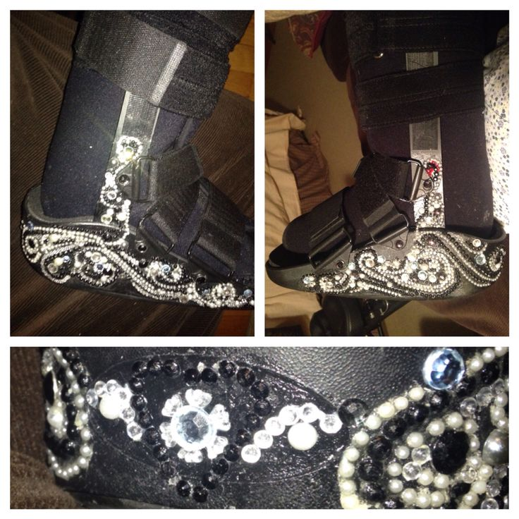 Bling!! glitz and glam walking boot cast.. Gots a wedding to go to!