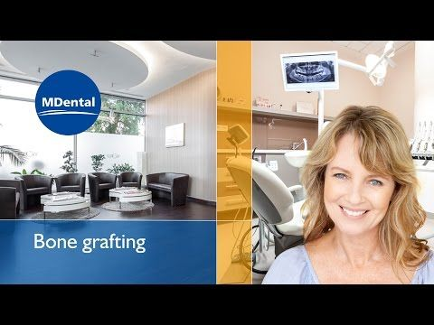 Painless and professional oral surgery abroad at MDental Clinic Hungary in the heart of Budapest. See the video to understand the procedure of bone grafting (also known as bone augmentation) Provided by Geistlich Biomaterials