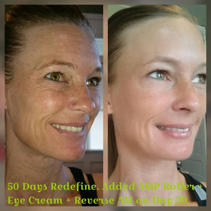 This before and after with Rodan+Fields Redefine is absolutely amazing!  #RFworks #RF #rodanandfields