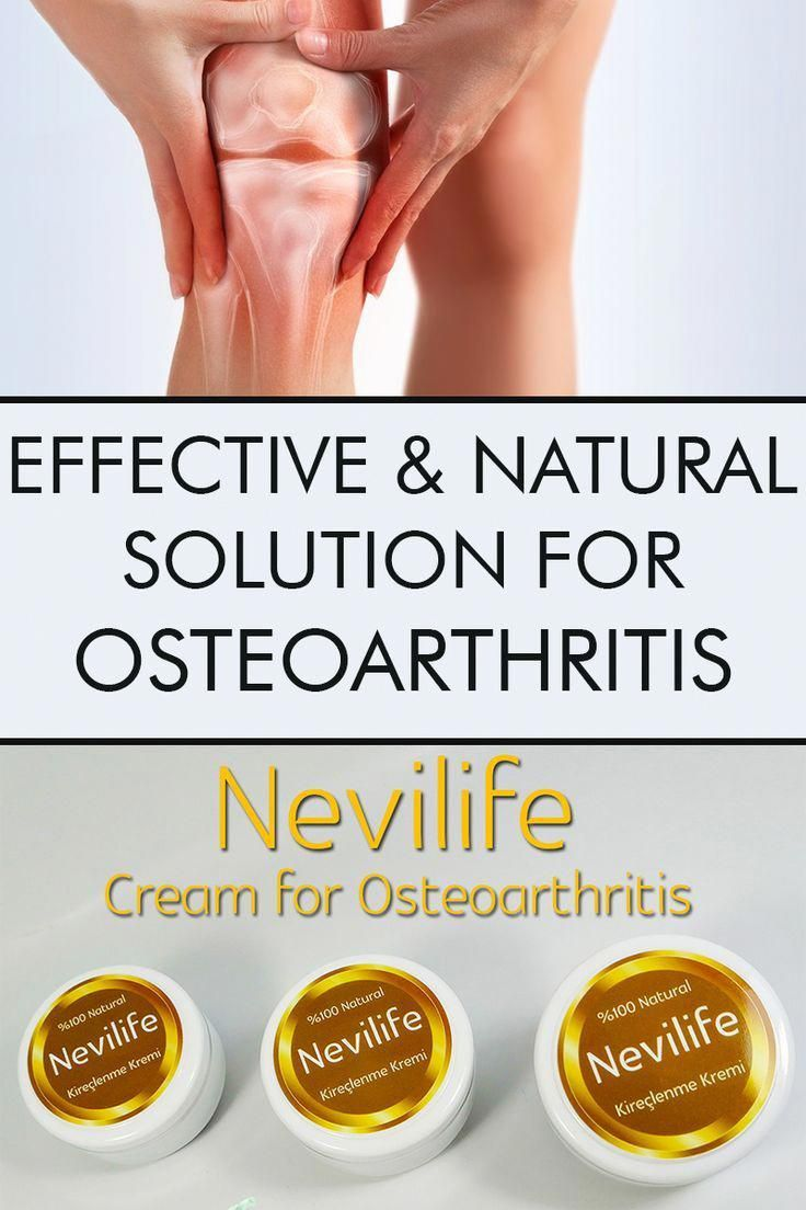 Methodsforunwantedhairremoval In 2020 Osteoarthritis Synovial Fluid Diy Hair Loss Treatment