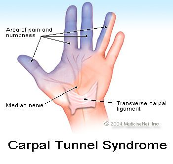 Carpal tunnel syndrome - People initially feel numbness and tingling of the hand in the distribution of the median nerve.