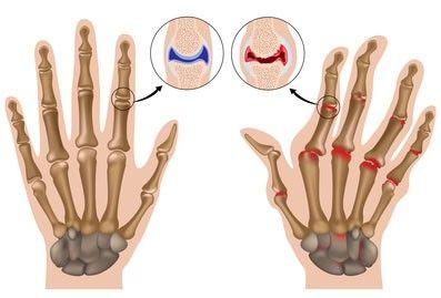 Вредно ли хрустеть пальцами? http://b-luron.com/