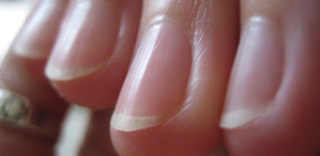 Zdrowe i estetycznie wyglądające skórki, http://akademiapaznokcia.blog.pl/2015/10/30/pielegnacja-skorek-10-sprawdzonych-rad/