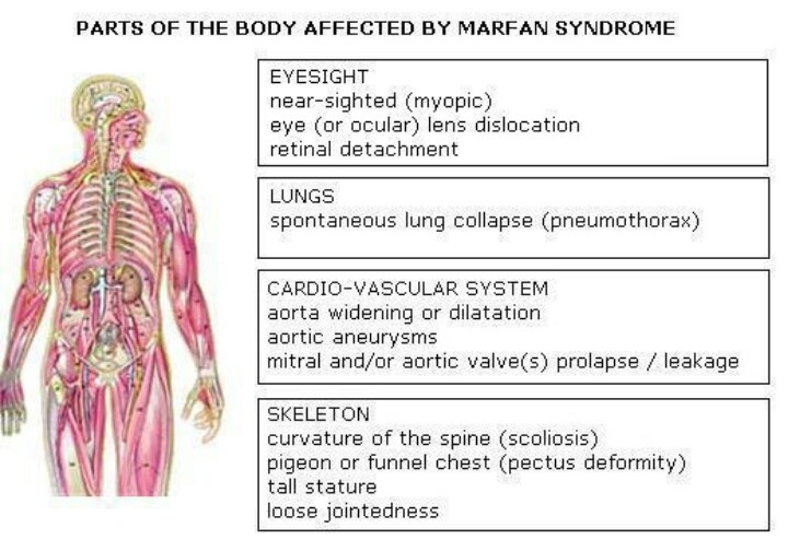 a clinical description of the marfans syndrome Description of procedure or service marfan syndrome (mfs) is a systemic  connective tissue disorder that may have a high degree of clinical variability and .