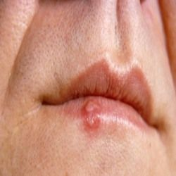 Natural cures for herpes outbreak years