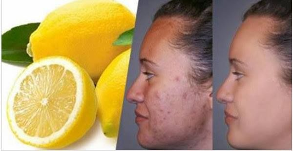 Come Eliminare Le Cicatrici Per Sempre Con Il Limone Eliminare Le Cicatrici ? Noi abbiamo trovato una soluzione efficace. Le cicatrici