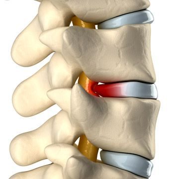 Clínica de Massagem Terapêutica e Quiropraxia em São Jose SC, Massoterapia: Hérnia de Disco – O que é, Causas, Sintomas e Trat...