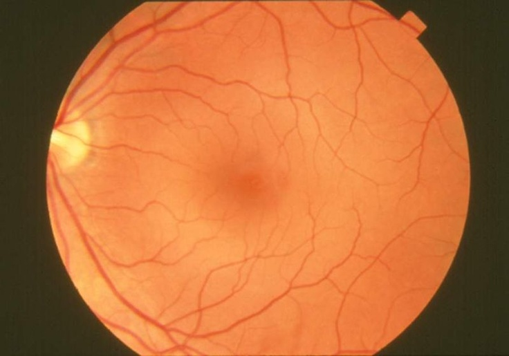 The Five Most Common Eye Problems in Adults http://missolive.hubpages.com/_mostm/hub/The_Five_Most_Common_Eye_Problems_in_Adults