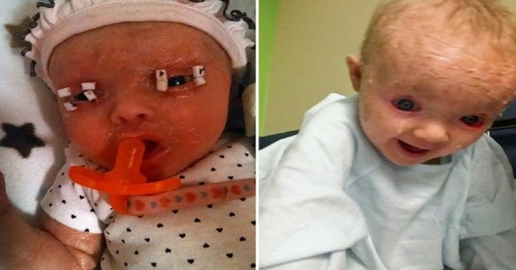 Νεαρή μητέρα γεννάει ένα κοριτσάκι αλλά οι γιατροί τρομάζουν μόλις βλέπουν ότι το δέρμα του μοιάζει με «πλαστικό περιτύλιγμα» Crazynews.gr