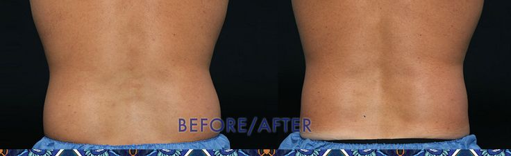 Got Love Handles? Check out this before CoolSculpting and After CoolSculpting photo!  Book a consultation on our website.   http://resouluna.com/consultation/?utm_content=buffer71584&utm_medium=social&utm_source=pinterest.com&utm_campaign=buffer