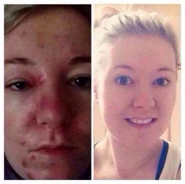 ✨Look at these amazing results!  me if you would like to know how✨