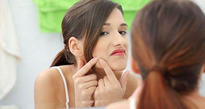 De bekendste vorm van acne is 'jeugdpuistjes'.  Deze acne-variant wordt gekenmerkt door mee-eters en puisten. Acne en puistjes kunnen worden behandeld met medicijnen zoals antibiotica en vitamine A crème. De beste tips, behandelingen & middelen tegen puistjes en mee-eters vind je in dit artikel. Kortom: acne voorkomen, verhelpen en behandelen