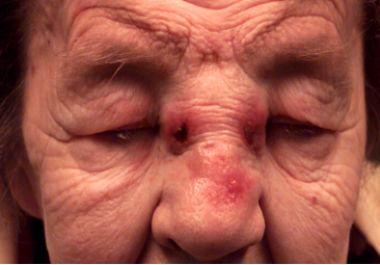 Primary Non-Hodgkin's Lymphoma of The Nasal Cavity: Unusual Site and Unusual Presentation