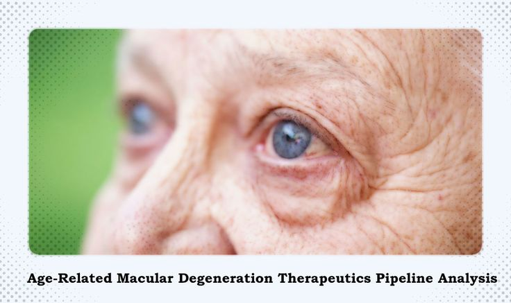 Age-Related+Macular+Degeneration+Therapeutic+Pipeline+Projects+Vast+Growth+Ahead
