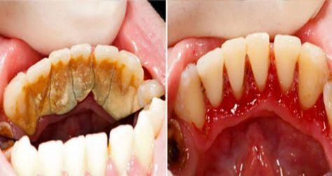Soyez votre propre dentiste et découvrez cette astuce pour éliminer le tartre rapidement !