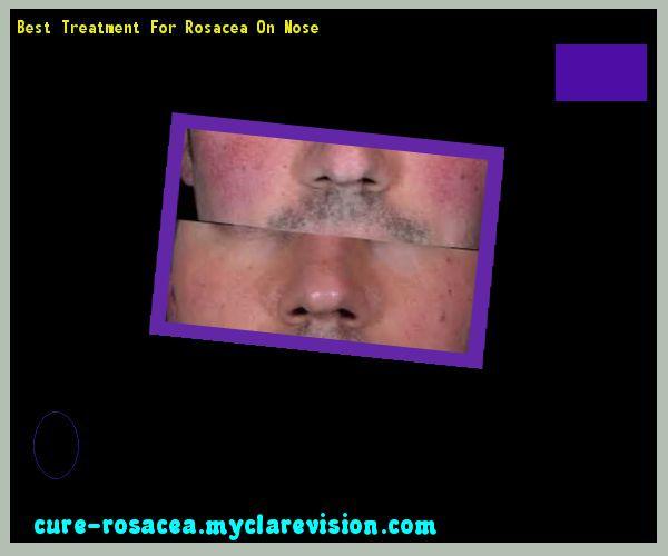 Best Treatment For Rosacea On Nose 182745 - Cure Rosacea