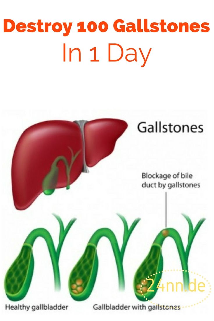 The following recipe can help you get rid of gallstones completely naturally