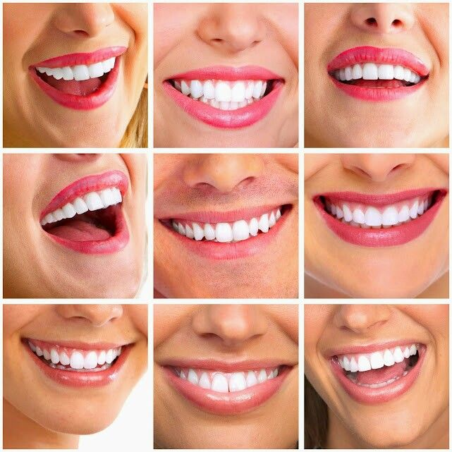 Everyones loves having a freshly whitened smile.you just  naturally smile more .but did  you Know they arent't all the  same ?teeth whitening restores natural  tooth color and bleaching strips ,bleaching open ,beaching gel and laser bleaching .