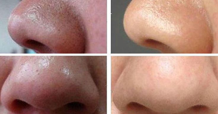 Jak se zbavit hlubokých černých teček na obličeji