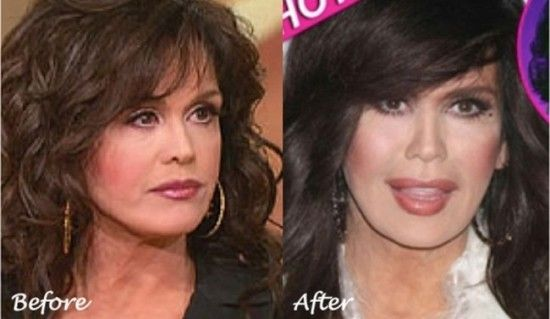 Marie Osmond Plastic Surgery Photo Before and After - She is getting more & more unrecognizable on those Weight Watchers commercials!