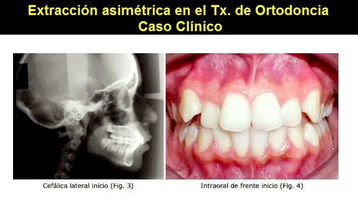 Extracción asimétrica en el tratamiento de Ortodoncia - Caso Clínico | OVI Dental
