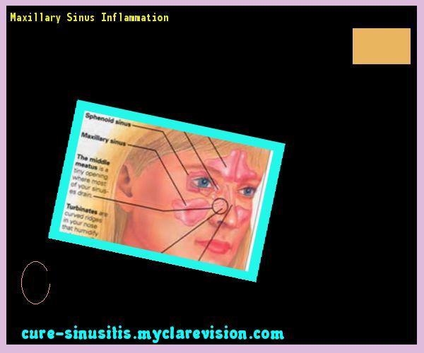 Best 20+ Maxillary sinus ideas on Pinterest Maxillary Sinus Inflammation