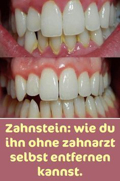 Tartar: how to remove it without a dentist.