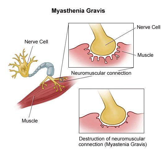 prednisone used to treat myasthenia gravis