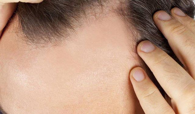 ¿Notas que tu #pelo se cae más de lo normal? En #CentrosBeltrán te hacemos un examen y diagnóstico gratuito para conocer las causas y dar…