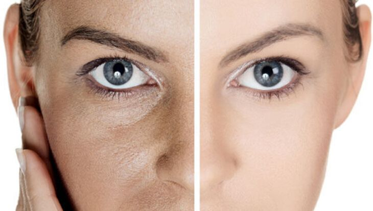 Would you like to reduce pore size?Using a clean a…