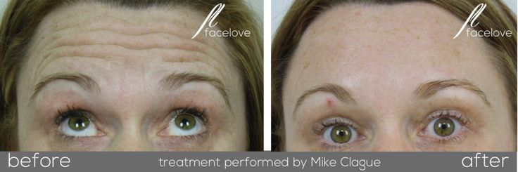 Forehead line treatment