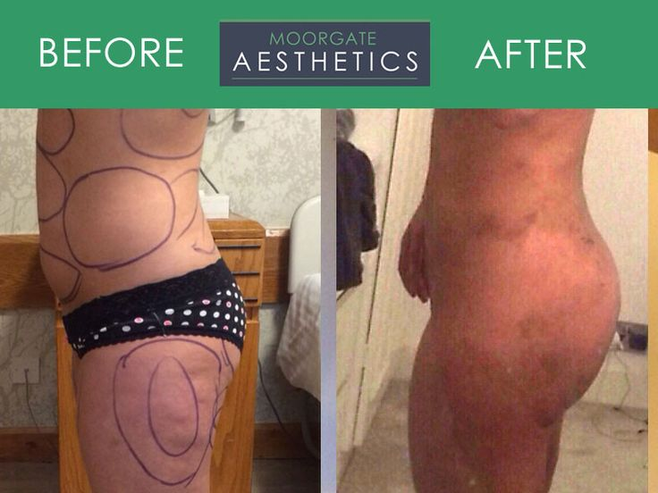 his must be the best procedure EVER !!! Remove unwanted FAT from Tummy, Flanks & Thighs and ADD TO YOUR BUTTOCKS.