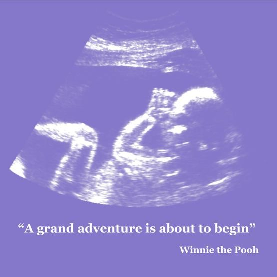 Baby Ultrasound Art: A grand adventure is about to begin, Winnie the pooh. Nursery Wall Art