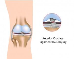 What do you know about ligament tears in the knee?