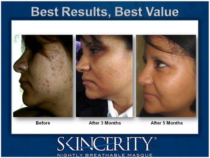 AMAZING RESULTS with Skincerity! Acne