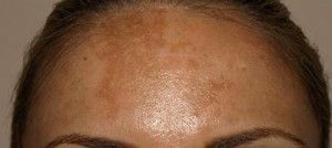 Melasma reprezinta o afectiune dermatologica dobandita, caracterizata prin http://www.medpont.ro/dermato-venerologie/ce-este-melasma/