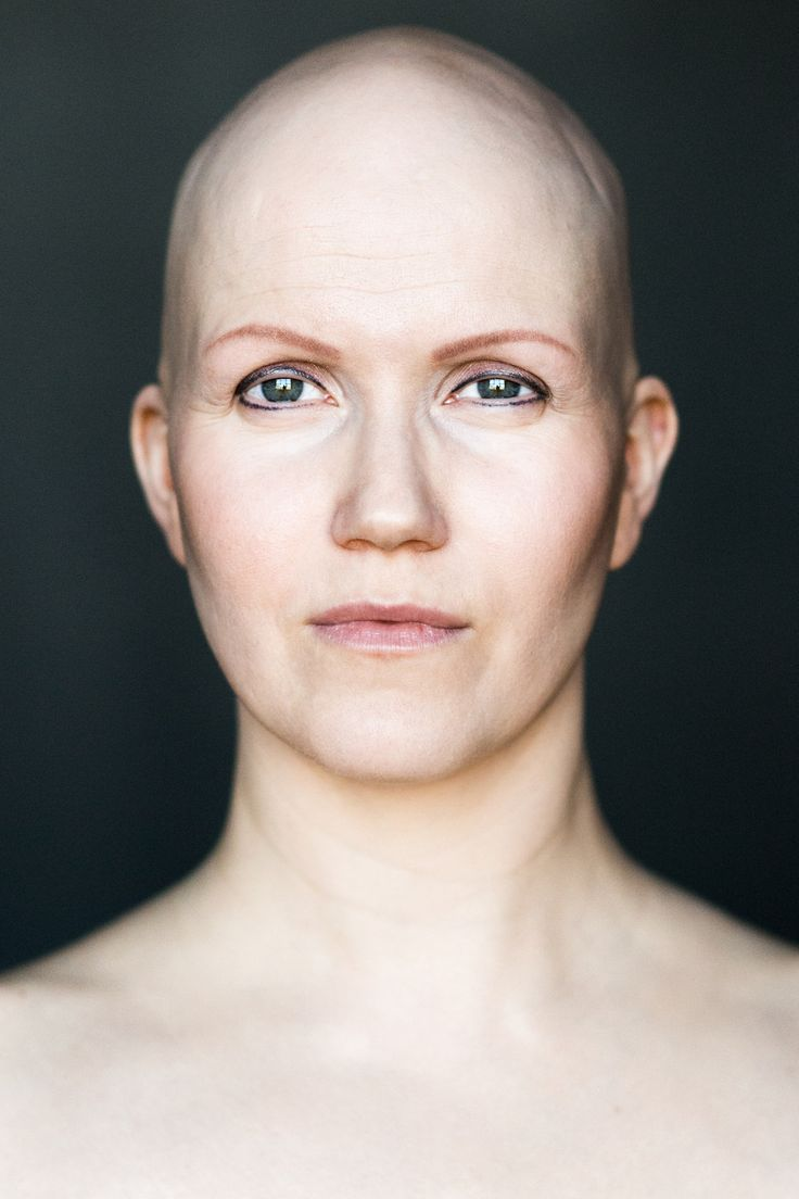 This photo series captures the beauty of bald women.