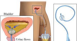 Urinary Catheterization Nursing Procedure & Management