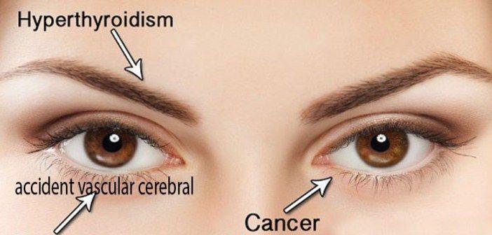 Ochii pot indica cel mai rapid boala de care suferi