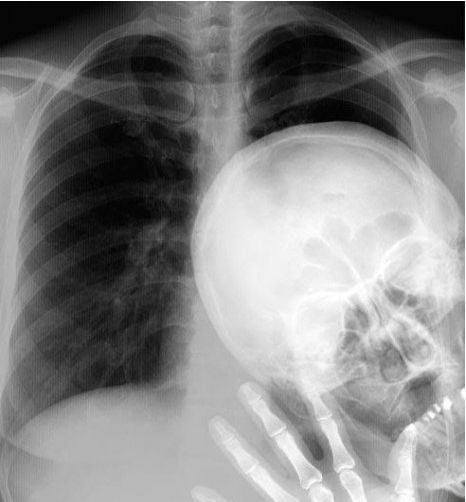 This scares the living daylights out of me! Then I laugh...I'd hate to be the radiologist that first saw this one!