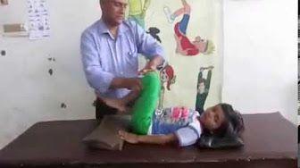cerebral palsy rehabilitation - YouTube