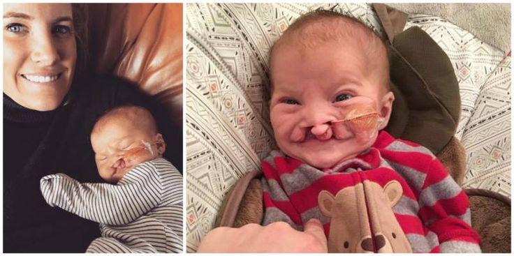 Lille Brody csak néhány hónapos még de már gyűlölködő megjegyzések célpontja a Facebook-on. Annak ellenére, hogy a kicsi még nagyon fiatal és nincs rá hatással ez az egész, szüleire Sarah-ra és Mike Hellnerre annál inkább. Brody felvágott ajkakkal és szájpadlással, valamint egy furcsa kromoszóma ...