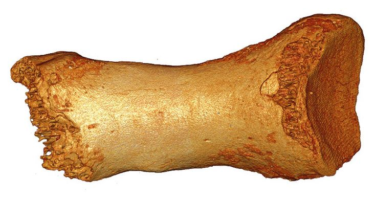 TOE-TO-TOE A 50,000-year-old Neandertal toe bone contains evidence that humans left a genetic mark on Neandertal DNA. ~~ Bence Viola