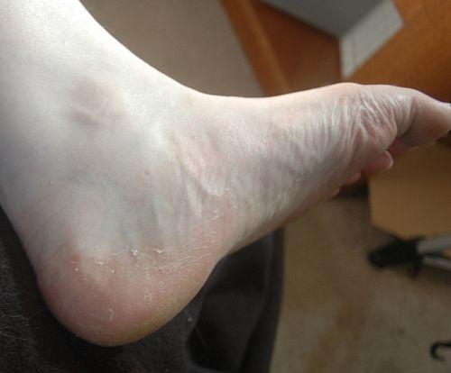 Was hilft gegen Fußpilz? Hausmitte gegen Fußpilz wie Essig, Salz, Backpulver oder Teebaumöl bekämpfen ganz natürlich den lästigen Hautpilz. Hier finden Sie die besten natürlichen Fußpilzmittel!