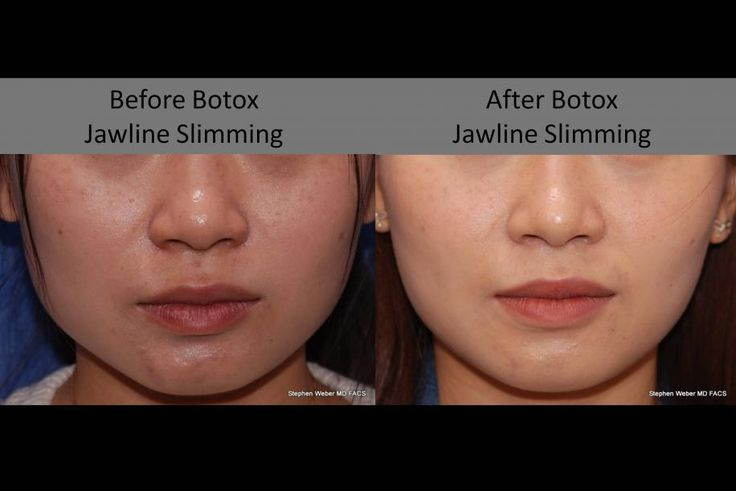 We love this! #Botox jawline #shaping. Refine and feminize the wide jaw with 5 minute injection treatment. Stephen Weber MD #Denver Colorado