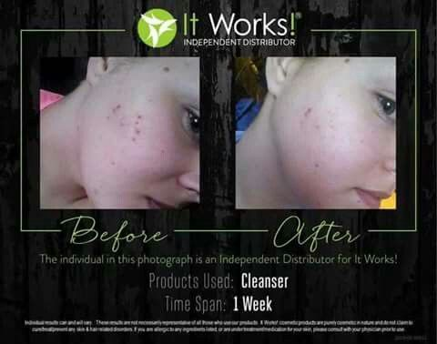 Amazing skin results after using our toner and cleanser!! #cleaneating #clean #clearface #clearskin #skincare #toner #cleanser #getfit #workout #makeup #health #skinmask #beauty