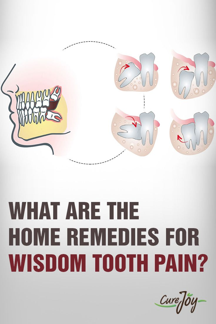 What Are The Home Remedies For Wisdom Tooth Pain?