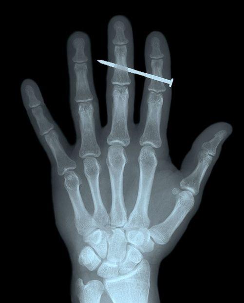 Worldu0027s Weirdest X Rays