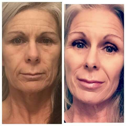 "Good Morning y'all!  Lets play a little game!  This is a before & after photo of my favorite #bossbabe Charlene Jenkins!  How old do you think she is?   Do you want to know how she achieved these results? Do you want to see your results?   For anyone who signs up for my 90 day challenge will get a gift!   3 spots LEFT for the month of MARCH Text ""FACE WRAPS"" to 9285427844 to find out how you can Save 40% on your 90 day challenge!"