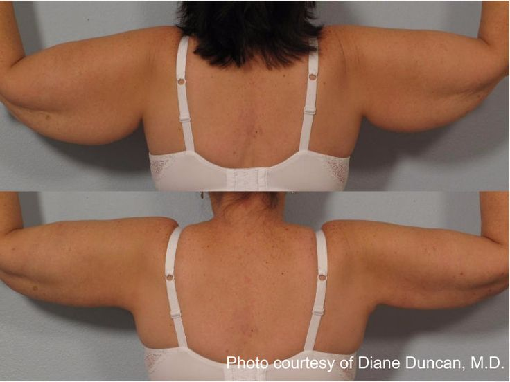 Arm Lift Incisions : Best changes skin tightening images on pinterest